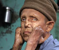 Pengobatan Penyakit Lepra